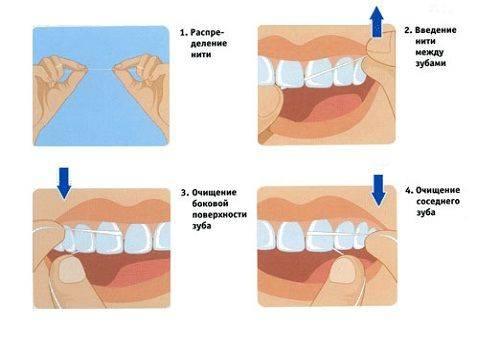 последовательность чистки зубов нитью