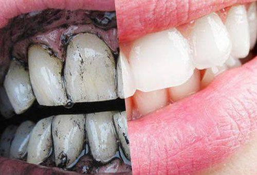 Как в домашних условиях очистить зубы от налета 424
