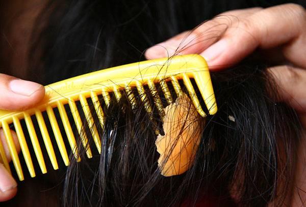 Вычесывание жвачки из волос