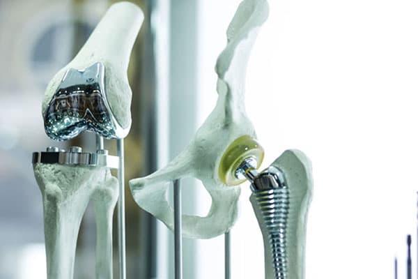 Металлические протезы суставов