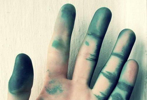 испачканная рука в зеленке