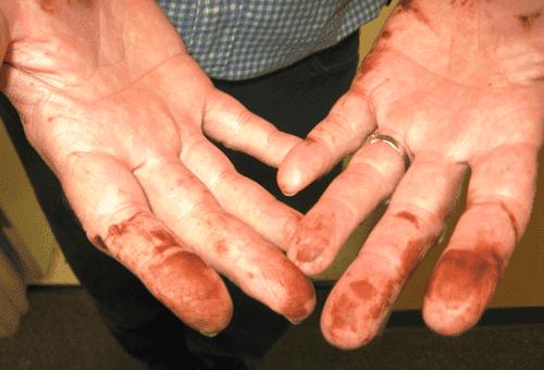 пятна от марганцовки на руках